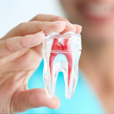 Root Canals and You: Top 10 Questions Answered