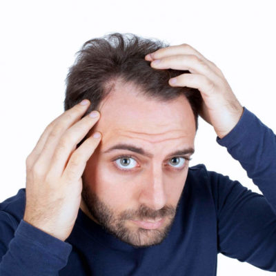 The 5 Hair Loss Treatments for Men