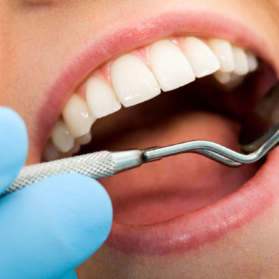 5 Worst Things For Your Teeth
