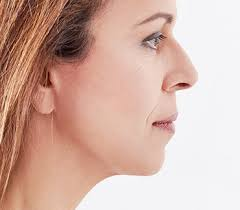 Image result for https://faceliftplasticsurgery.com.au/face-lift-surgery-sydney/
