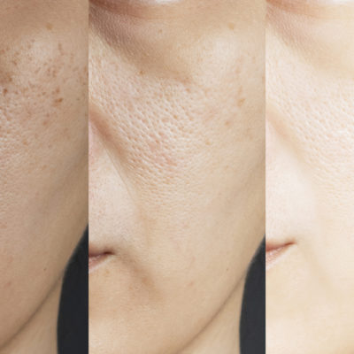 An Everything Guide to Avoid Dull Skin