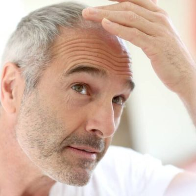 The Most Effective Hair Loss Treatments